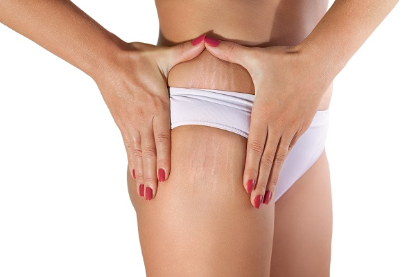 Best Ways To Prevent And Lighten Stretch Marks
